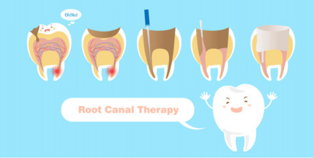 root canal therapy in gurnee IL