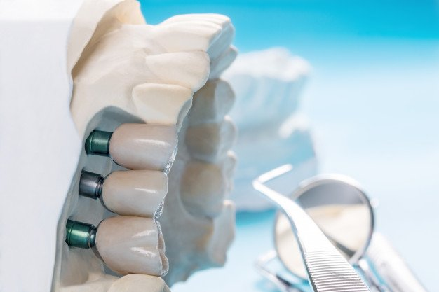 Dental Implants in Chicago