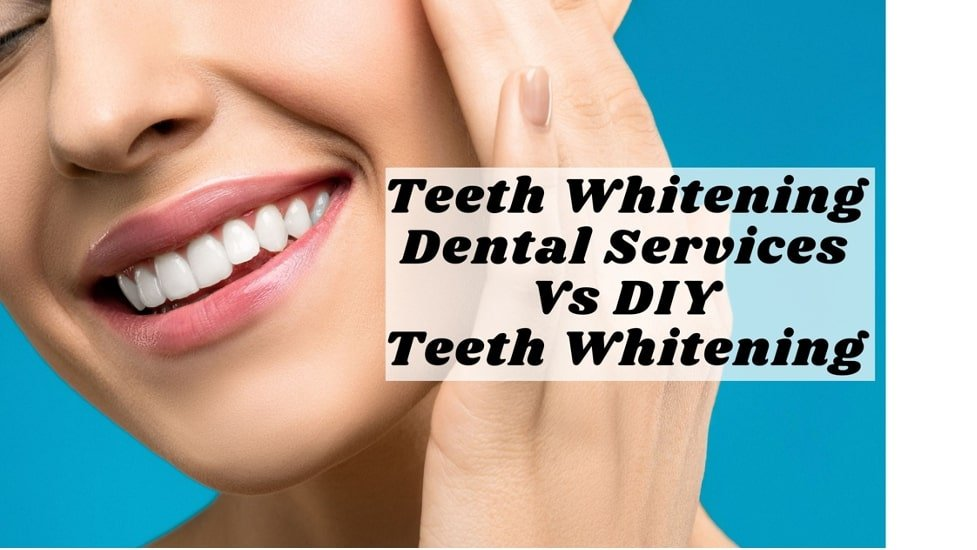Gurnee Teeth Whitening Dental Services Vs DIY Teeth Whitening