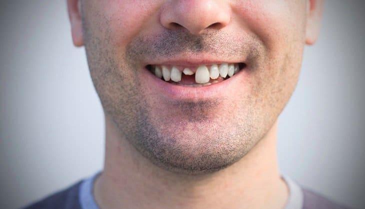 Emergency Dentist in Gurnee & Park City IL