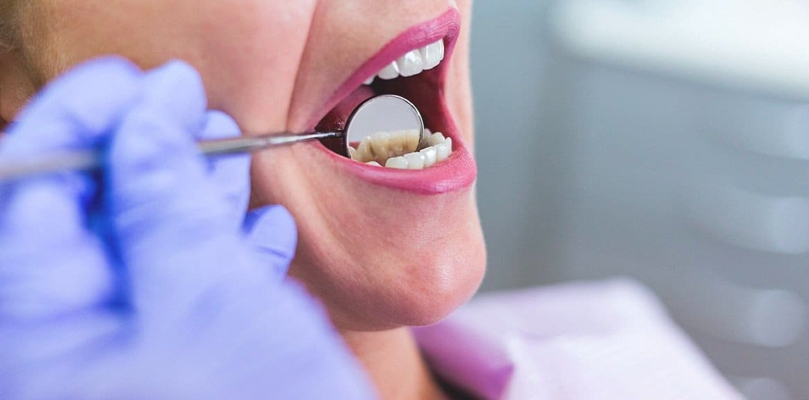 Gurnee IL Root Canal Warning Signs