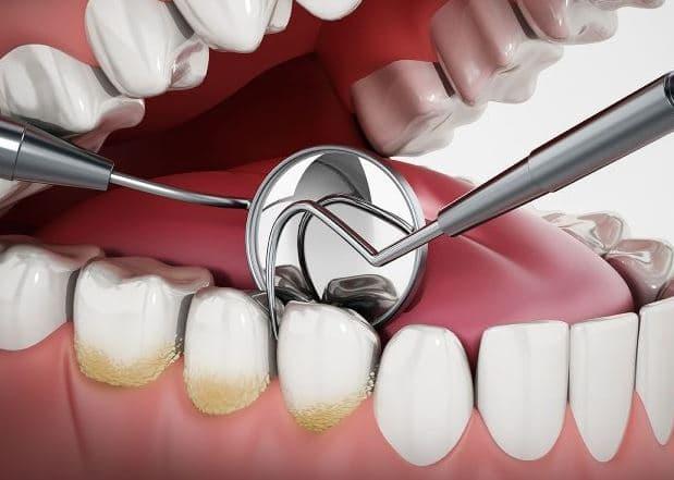 Remove Dental Plaque & Tarter in Gurnee (Park City, IL)