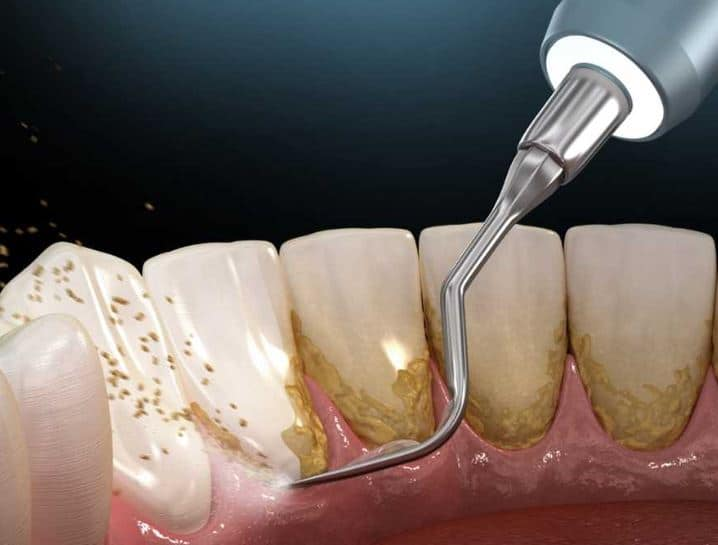 Dental Plaque Removal Services in Gurnee (Park City, IL)